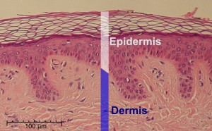 waht is the Epidermis how to take care of your skin lake city pt